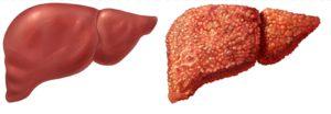 Ryzyko chirurgicznego leczenia otyłości chora wątroba